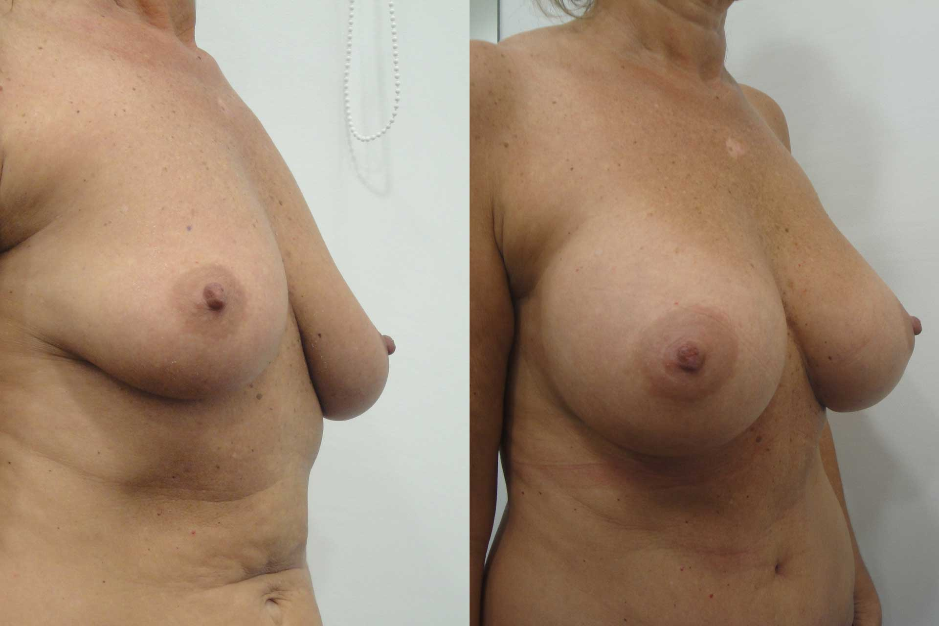 Breast Augmentation Palo Alto