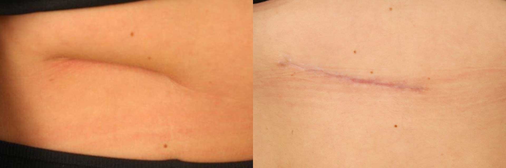 Keloids And Scars On Skin Book Your Free Consultation